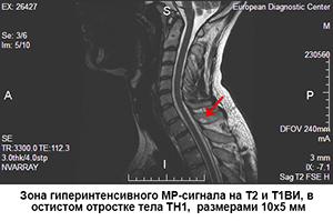 varicoză de hirudoterapie pelviană mică)