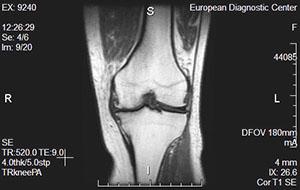 Что видно на мрт коленного сустава клиники специализирующиеся на заболеваниях суставов в киеве